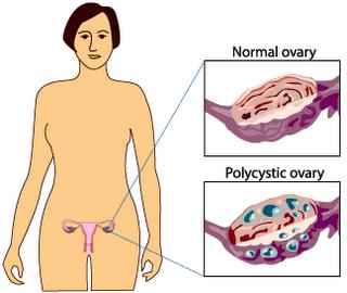 Pcos Symptoms (23)